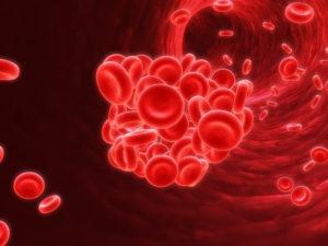 Caregiver in Springfield VA: What Causes Lupus?
